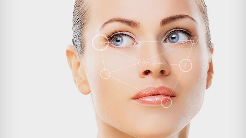 Bellafill New Providence | Injectable Smile Line Filler Summit