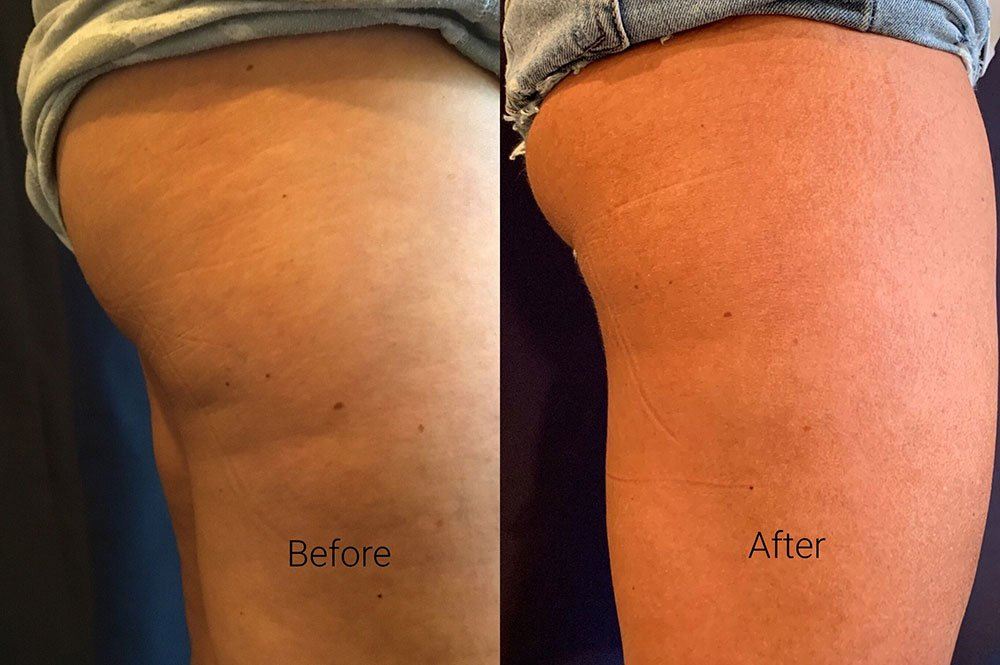 SculpSure Before and Afters
